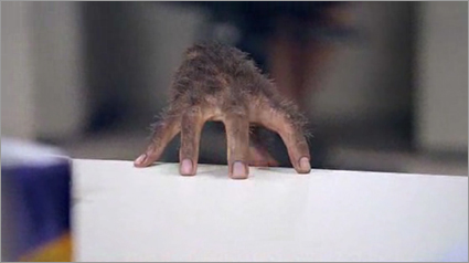 Hairy-hand