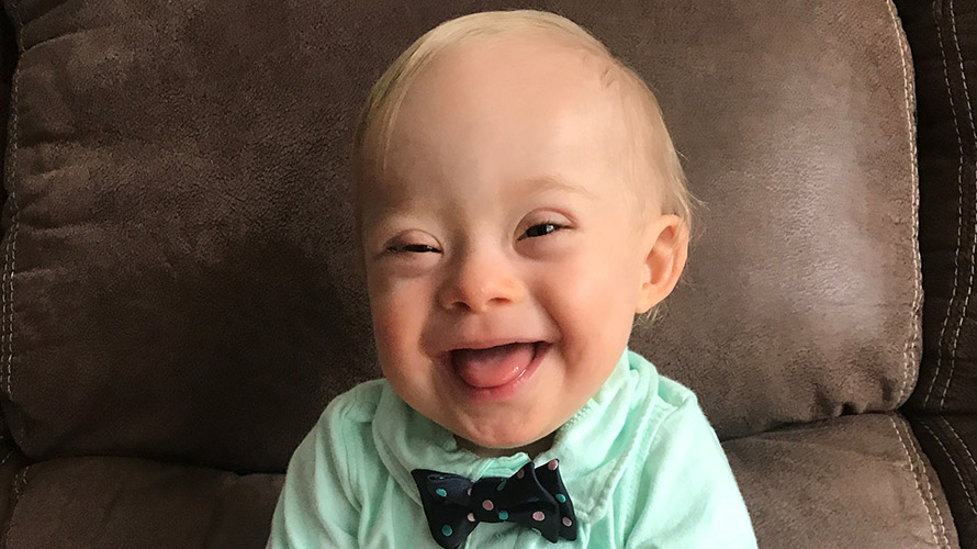 Lucas is the first 'Gerber Baby' with special needs