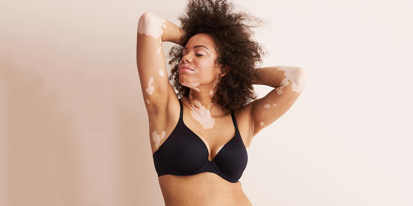 Aerie Continues Its Real Streak Casting Models With Illnesses And