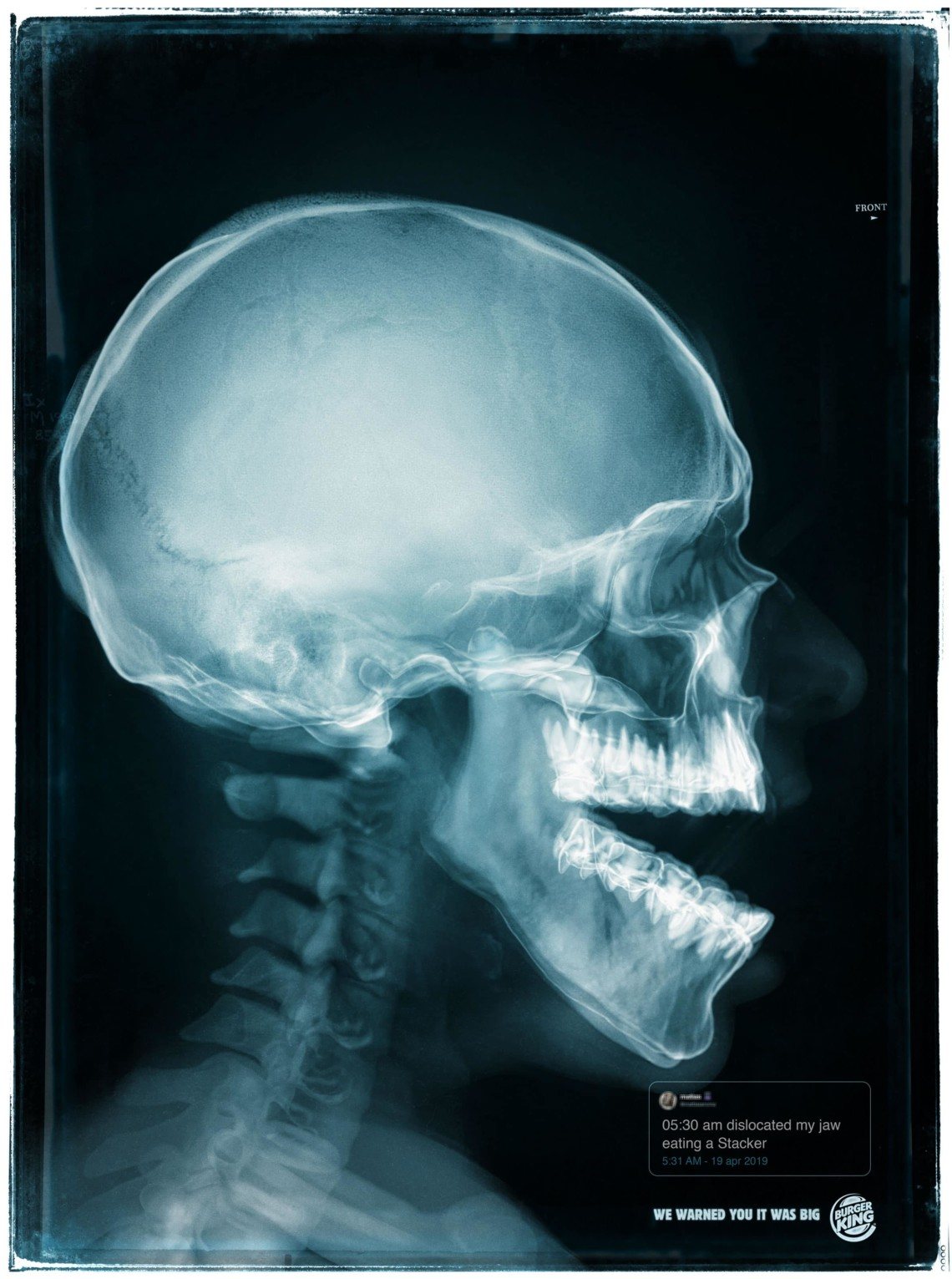 An X-ray of a jaw injury as a result of eating a Whopper is shown.