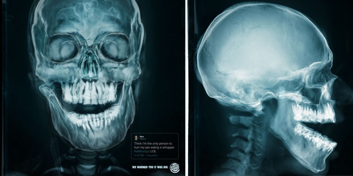 An X-ray of a jaw injured from eating a Whopper is shown.